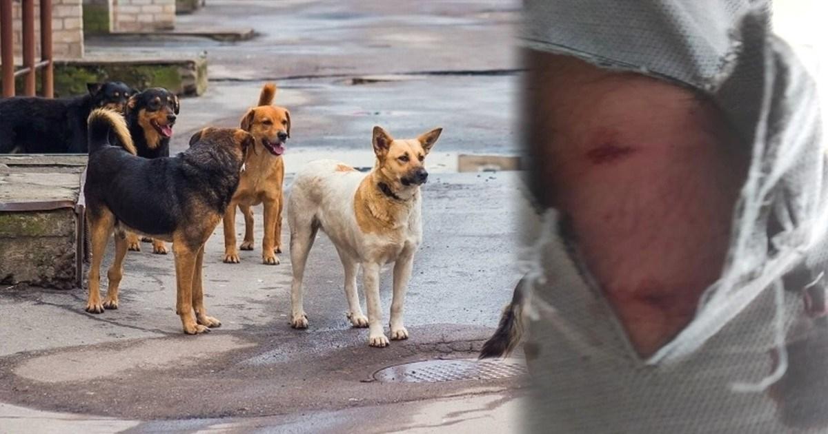 Επίθεση από αγέλη σκύλων δέχτηκε ο Δημοτικός Σύμβουλος του Δήμου Θηβαίων Απόστολος Δαγδελένης